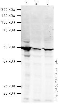 Western blot - Anti-Cytokeratin 18 antibody (ab24561)