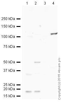 Western blot - Anti-CD31 antibody [P2B1] (ab24590)