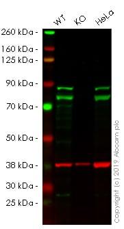 Western blot - Anti-DDX17 antibody (ab24601)