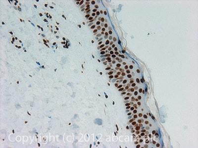 Immunohistochemistry (Formalin/PFA-fixed paraffin-embedded sections) - Anti-Histone H3 (di methyl K27) antibody - ChIP Grade (ab24684)