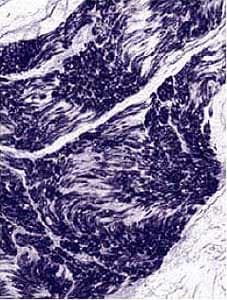 Immunohistochemistry (Formalin/PFA-fixed paraffin-embedded sections) - Anti-NSE antibody [NSE-P1] (ab24709)