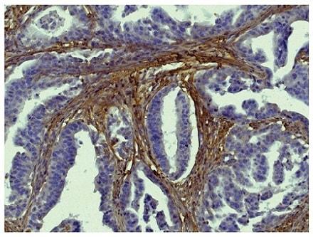 Immunohistochemistry (Formalin/PFA-fixed paraffin-embedded sections) - Biotin Anti-Collagen I antibody (ab24821)