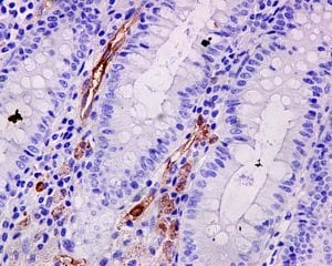Immunohistochemistry (Formalin/PFA-fixed paraffin-embedded sections) - Anti-Fascin antibody [EP5902] - BSA and Azide free (ab240034)