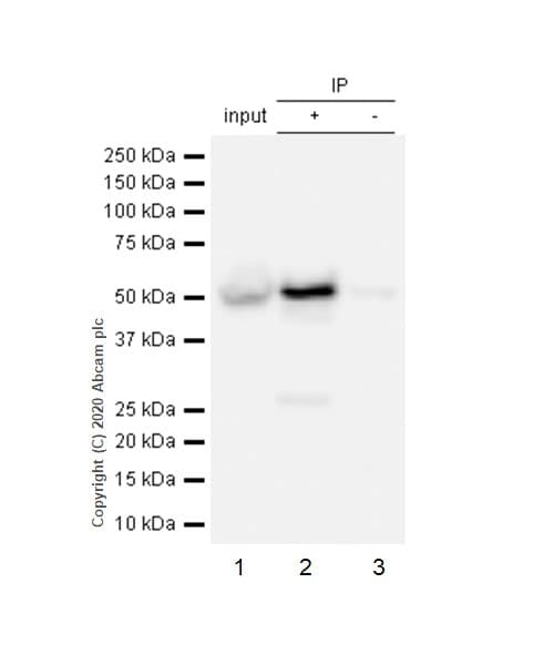 Immunoprecipitation - Anti-Fascin antibody [EP5902] - BSA and Azide free (ab240034)