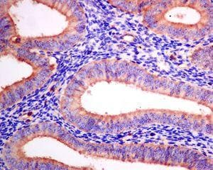 Immunohistochemistry (Formalin/PFA-fixed paraffin-embedded sections) - Anti-Arp2 antibody [EPR7980] - BSA and Azide free (ab240037)