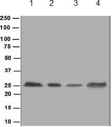 Western blot - Anti-HPRT antibody [EPR5298] - BSA and Azide free (ab240051)