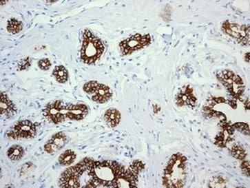 Immunohistochemistry (Formalin/PFA-fixed paraffin-embedded sections) - Anti-Cytokeratin 18 antibody [EPR1626] - BSA and Azide free (ab240054)