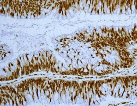 Immunohistochemistry (Formalin/PFA-fixed paraffin-embedded sections) - Anti-EWSR1/EWS antibody [EPR4647] - BSA and Azide free (ab240055)
