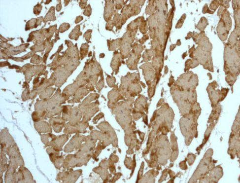 Immunohistochemistry (Formalin/PFA-fixed paraffin-embedded sections) - Anti-Tropomyosin 1 (alpha) antibody [EPR5159] - BSA and Azide free (ab240056)
