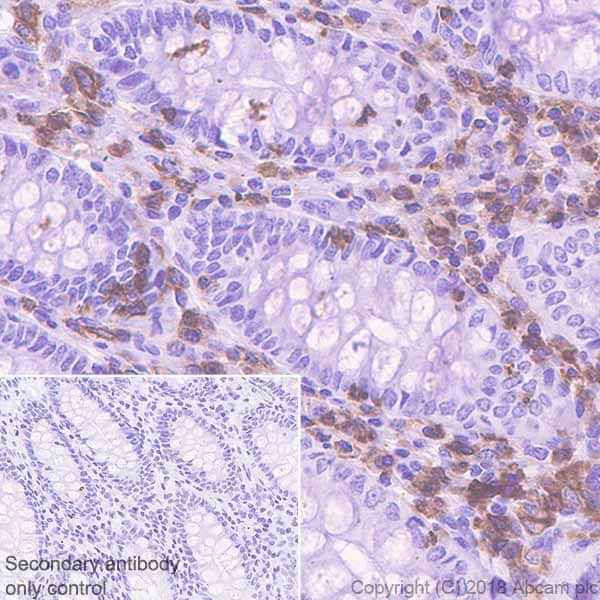 Immunohistochemistry (Formalin/PFA-fixed paraffin-embedded sections) - Anti-LSP1 antibody [EPR5997] - BSA and Azide free (ab240063)