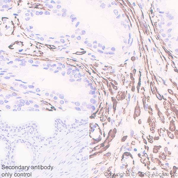 Immunohistochemistry (Formalin/PFA-fixed paraffin-embedded sections) - Anti-smooth muscle Myosin heavy chain 11 antibody [EPR5336(B)] - BSA and Azide free (ab240069)