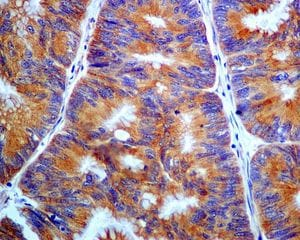 Immunohistochemistry (Formalin/PFA-fixed paraffin-embedded sections) - Anti-PHLDA1 antibody [EPR6674] - BSA and Azide free (ab240076)
