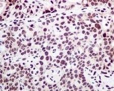 Immunohistochemistry (Formalin/PFA-fixed paraffin-embedded sections) - Anti-PTBP1 antibody [EPR9048(B)] - BSA and Azide free (ab240079)