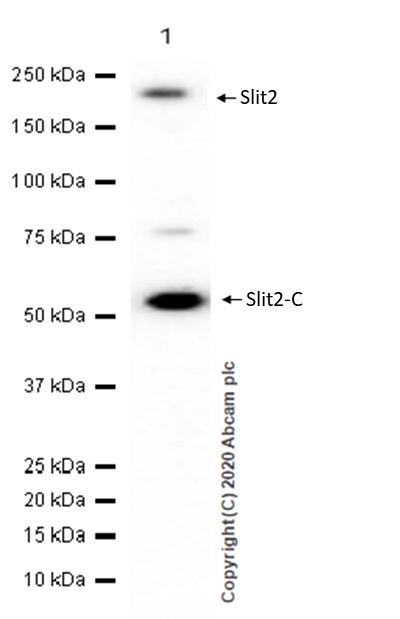 Western blot - Anti-Slit2 antibody [EPR2771] - BSA and Azide free (ab240085)