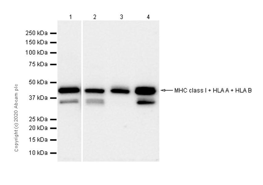 Western blot - Anti-MHC class I + HLA A + HLA B antibody [EPR1394Y] - BSA and Azide free (ab240087)