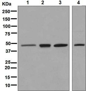 Western blot - Anti-ERCC8 antibody [EPR9237] - BSA and Azide free (ab240096)