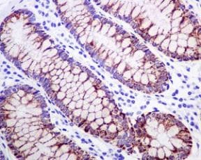 Immunohistochemistry (Formalin/PFA-fixed paraffin-embedded sections) - Anti-HMGCS2 antibody [EPR8642] - BSA and Azide free (ab240099)