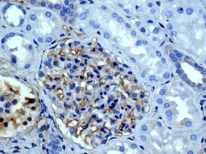 Immunohistochemistry (Formalin/PFA-fixed paraffin-embedded sections) - Anti-Galectin 1 antibody [EPR3206(2)] - BSA and Azide free (ab240111)