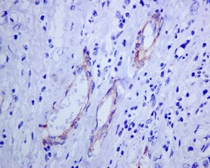 Immunohistochemistry (Formalin/PFA-fixed paraffin-embedded sections) - Anti-NG2 antibody [EPR9195] - BSA and Azide free (ab240112)