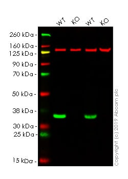 Western blot - Anti-VDAC1 / Porin antibody [EPR10852(B)] - BSA and Azide free (ab240128)