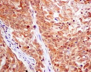 Immunohistochemistry (Formalin/PFA-fixed paraffin-embedded sections) - Anti-CKS2 antibody [EPR7946(2)] - BSA and Azide free (ab240129)