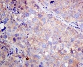 Immunohistochemistry (Formalin/PFA-fixed paraffin-embedded sections) - Anti-VPS35 antibody [EPR11501(B)] - BSA and Azide free (ab240141)