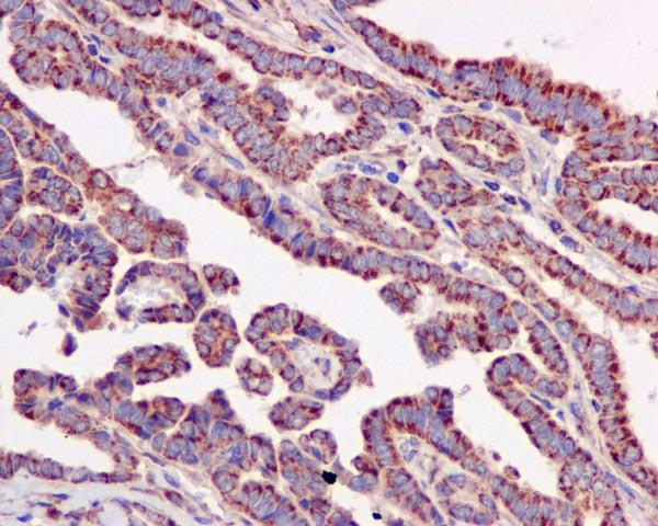 Immunohistochemistry (Formalin/PFA-fixed paraffin-embedded sections) - Anti-ACAT1 antibody [EPR10359] - BSA and Azide free (ab240152)
