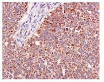 Immunohistochemistry (Formalin/PFA-fixed paraffin-embedded sections) - Anti-FABP-1 antibody [EPR12354(B)] - BSA and Azide free (ab240164)