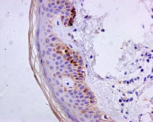 Immunohistochemistry (Formalin/PFA-fixed paraffin-embedded sections) - Anti-Cytokeratin 9 antibody [EPR10932-62] - BSA and Azide free (ab240165)