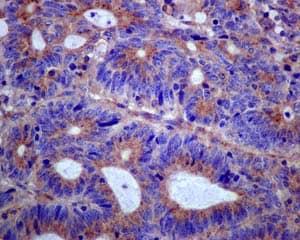 Immunohistochemistry (Formalin/PFA-fixed paraffin-embedded sections) - Anti-Clathrin heavy chain antibody [EPR12235(B)] - BSA and Azide free (ab240172)