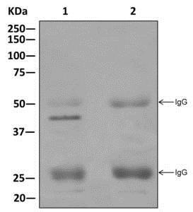 Immunoprecipitation - Anti-PHD finger protein 6/PHF6 antibody [EPR11997] - BSA and Azide free (ab240176)
