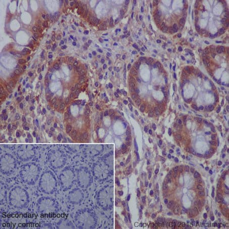 Immunohistochemistry (Formalin/PFA-fixed paraffin-embedded sections) - Anti-MVP antibody [EPR13227(B)] - BSA and Azide free (ab240184)