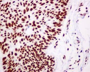 Immunohistochemistry (Formalin/PFA-fixed paraffin-embedded sections) - Anti-ZBTB7A antibody [EPR13178(B)] - BSA and Azide free (ab240185)