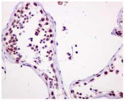 Immunohistochemistry (Formalin/PFA-fixed paraffin-embedded sections) - Anti-ASH2L antibody [EPR13107(B)] - BSA and Azide free (ab240191)