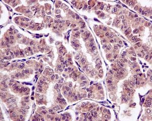 Immunohistochemistry (Formalin/PFA-fixed paraffin-embedded sections) - Anti-SFT antibody [EPR13000(B)] - BSA and Azide free (ab240192)
