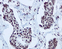 Immunohistochemistry (Formalin/PFA-fixed paraffin-embedded sections) - Anti-hnRNP A1 antibody [EPR12768] - BSA and Azide free (ab240196)