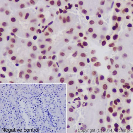 Immunohistochemistry (Formalin/PFA-fixed paraffin-embedded sections) - Anti-Histone H2B (acetyl K20) antibody [EPR859] - BSA and Azide free (ab240198)