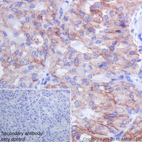 Immunohistochemistry (Formalin/PFA-fixed paraffin-embedded sections) - Anti-Integrin beta 3 antibody [ERP17507] - BSA and Azide free (ab240214)