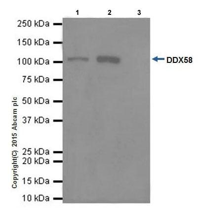 Immunoprecipitation - Anti-RIG-I/DDX58 antibody [EPR18629] - BSA and Azide free (ab240230)