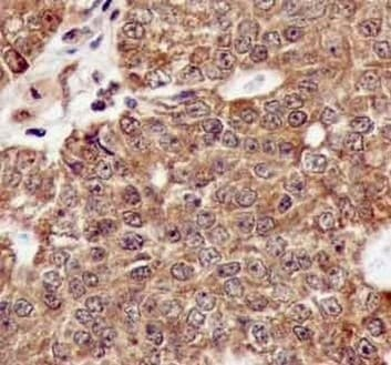 Immunohistochemistry (Formalin/PFA-fixed paraffin-embedded sections) - Anti-TTF2 antibody [EPR12756] - BSA and Azide free (ab240241)