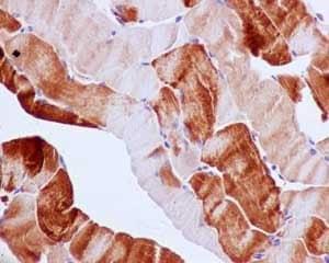 Immunohistochemistry paraffin embedded sections - Anti-G3BP antibody [EPR13985(B)] - BSA and Azide free (ab240246)