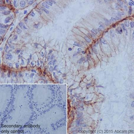 Immunohistochemistry (Formalin/PFA-fixed paraffin-embedded sections) - Anti-Integrin alpha 6 antibody [EPR18124] - BSA and Azide free (ab240252)