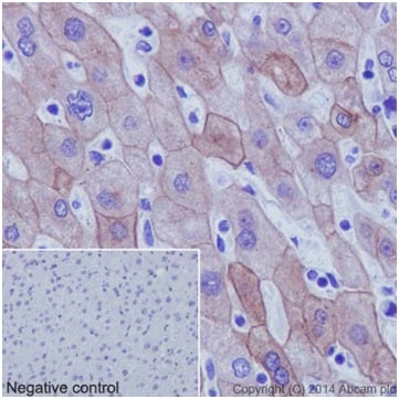 Immunohistochemistry (Formalin/PFA-fixed paraffin-embedded sections) - Anti-Cytokeratin 18 antibody [EPR17347] - BSA and Azide free (ab240254)