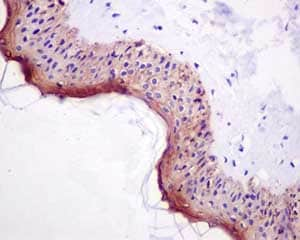 Immunohistochemistry (Formalin/PFA-fixed paraffin-embedded sections) - Anti-Involucrin antibody [EPR13054] - BSA and Azide free (ab240256)