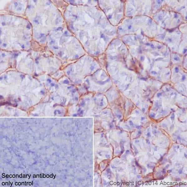 Immunohistochemistry (Formalin/PFA-fixed paraffin-embedded sections) - Anti-Integrin beta 4 antibody [EPR17517] - BSA and Azide free (ab240259)
