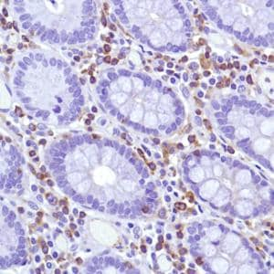 Immunohistochemistry (Formalin/PFA-fixed paraffin-embedded sections) - Anti-CSF-1-R antibody [SP211] - BSA and Azide free (ab240265)