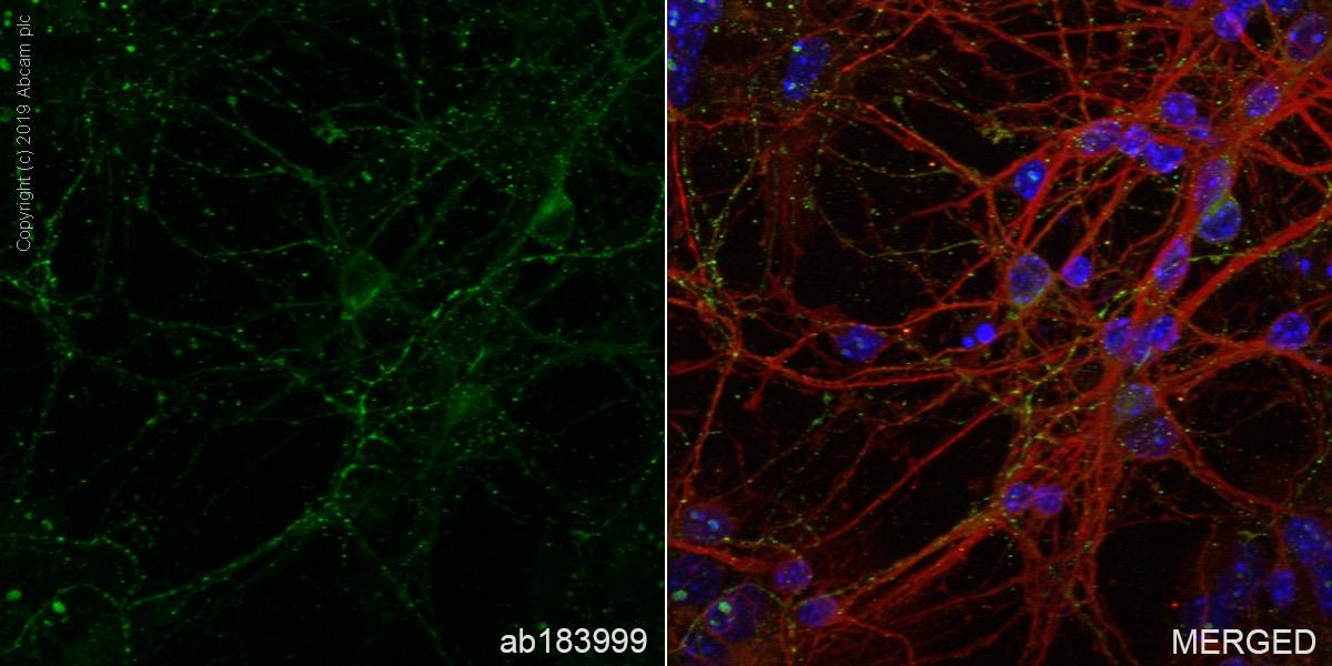 Immunocytochemistry/ Immunofluorescence - Anti-GAD65 + GAD67 antibody [EPR19366] - BSA and Azide free (ab240280)