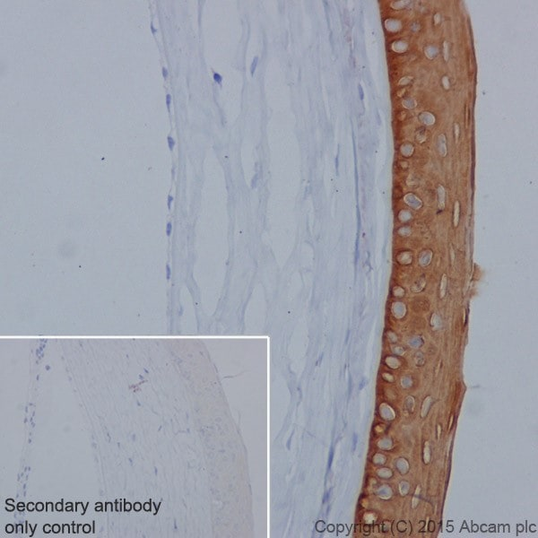 Immunohistochemistry (Formalin/PFA-fixed paraffin-embedded sections) - Anti-Keratin 12/K12 antibody [EPR17882] - BSA and Azide free (ab240295)