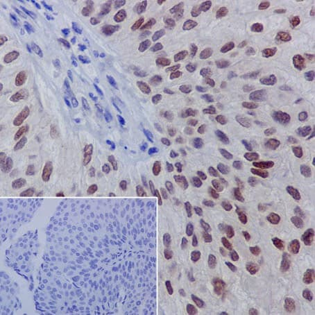 Immunohistochemistry (Formalin/PFA-fixed paraffin-embedded sections) - Anti-GATA3 (phospho S308) antibody [EPR18118] - BSA and Azide free (ab240298)