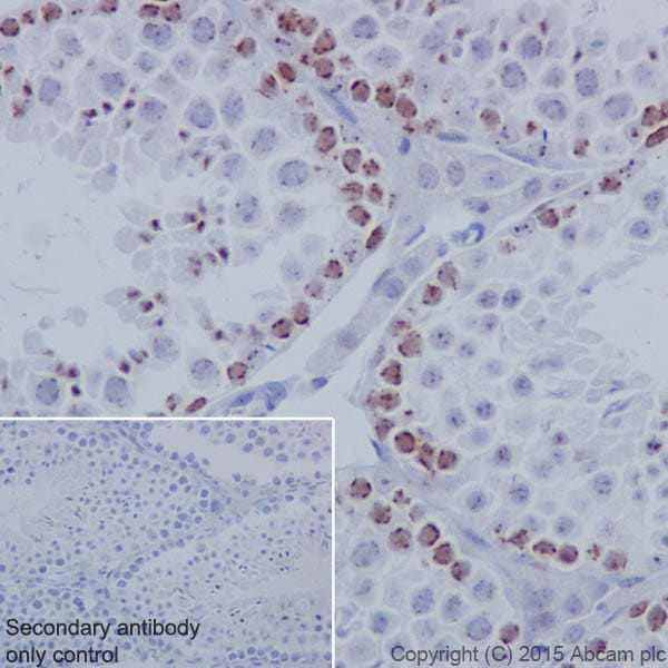 Immunohistochemistry (Formalin/PFA-fixed paraffin-embedded sections) - Anti-KMT1B / SUV39H2 antibody [EPR18495] - BSA and Azide free (ab240313)